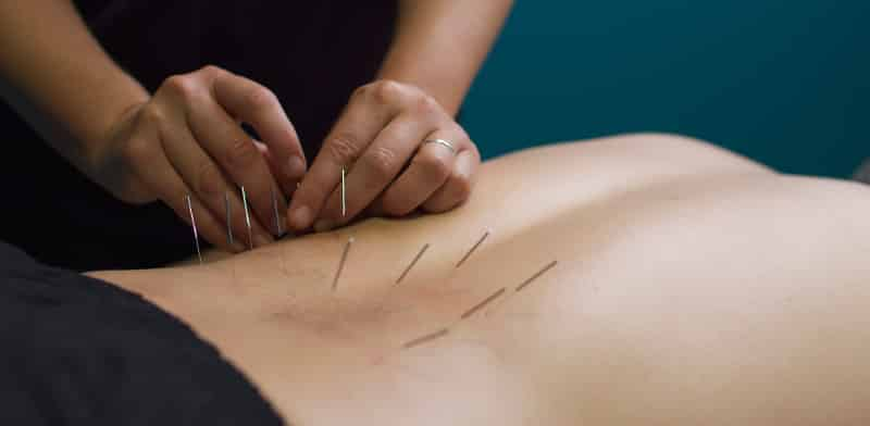 Acupuncture-Low-Back